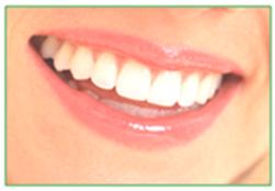 Bondi Dental   6 monthly dental check-up, examination, scale and clean - Dentist Bondi