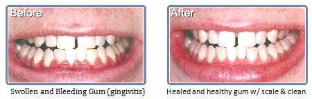 Bondi Dental   Active Maintenance Dental Program - Dentist Bondi