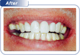 bondi-dental-broken-and-worn-down-teeth-after