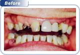 bondi-dental-broken-and-worn-down-teeth-before