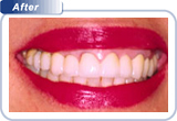 Complex Conditions Missing Teeth with High Lipline After