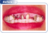 Complex Conditions Missing Teeth with High Lipline Before