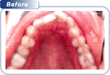 bondi-dental-crowded-and-overlapping-front-teeth-1-before