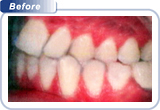 bondi-dental-crowded-and-overlapping-front-teeth-2-before
