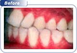 top rated cosmetic dentist bondi beach