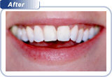 bondi-dental-crowded-and-overlapping-front-teeth-after