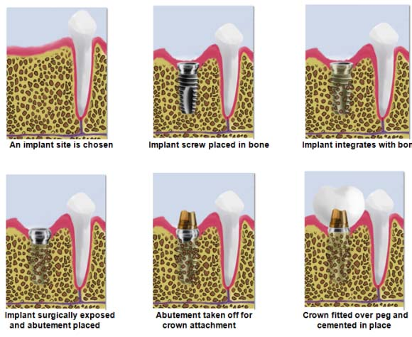 Bondi Dental | Dental Implant Procedure - Dentist Bondi