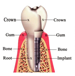 Bondi Dental | Dental Implants - Dentist Bondi