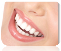 Bondi Dental | Laminated Composite Veneer - Dentist Bondi