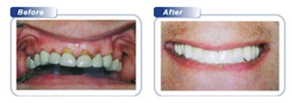 Bondi Dental | Restorative Dental Work 1 - Dentist Bondi