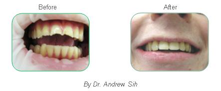 Bondi Dental | Restorative Dental Work 2 - Dentist Bondi