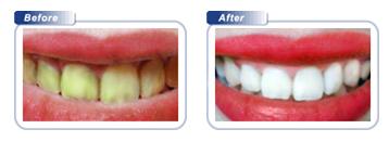 Bondi Dental | Teeth Whitening Results Before & After - Dentist Bondi