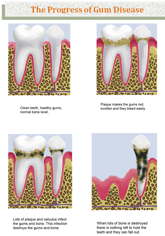 Bondi Dental | The progress of Gum Disease - Dentist Bondi