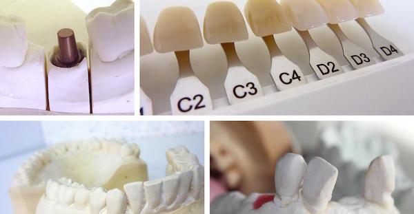 Bondi Cosmetic Dentistry