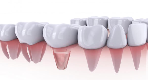 Why Consider Dental Implants Over Dentures