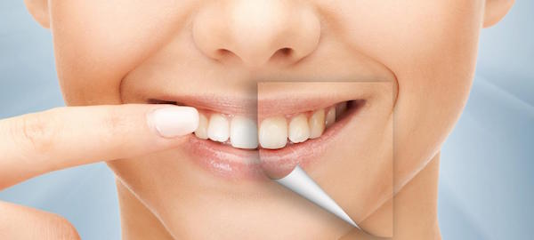 Dental Staining And Teeth Whitening