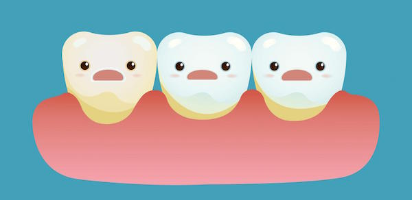 How Acids Harm Your Teeth