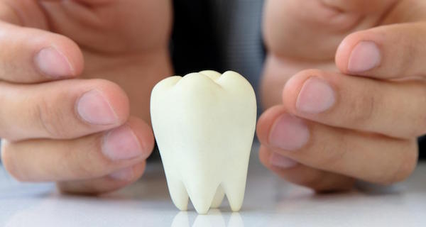 What Are Third Molars?