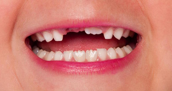 Avoiding The Consequences Of Having Missing Teeth