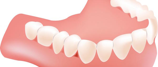Denture Care in Bondi: Best Rules to Follow for Dentures