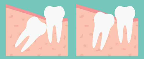 Simple Tips after your Wisdom Tooth Removal