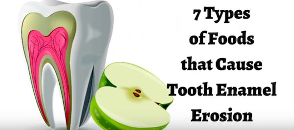 Foods That Cause Tooth Enamel Erosion Bondi Dental