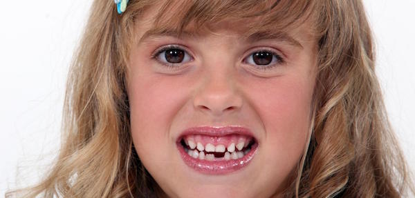 Tooth Loss: Why You Should Not Ignore Having Missing Teeth