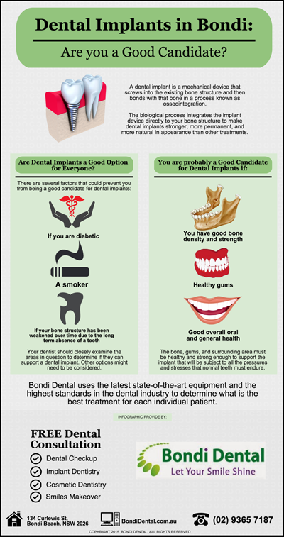 Dental Implants in Bondi: Are you a Good Candidate?