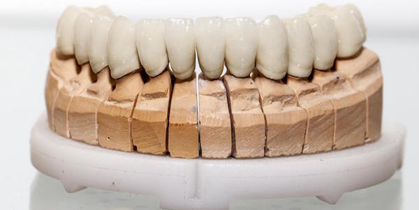 Restore Beauty and Functionality with Dental Bridges