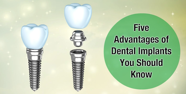 Five Advantages of Dental Implants You Should Know
