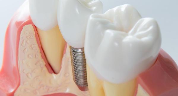 5 Questions to Ask When Searching about Dental Implants in Bondi