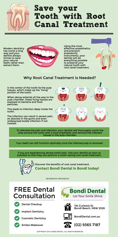 Save-your-Tooth-with-Root-Canal-Treatment