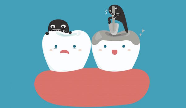 The Role of Dental Sealants in Tooth Decay Prevention