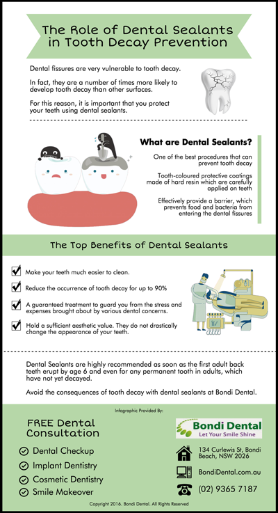 The-Role-of-Dental-Sealants-in-Tooth-Decay-Prevention