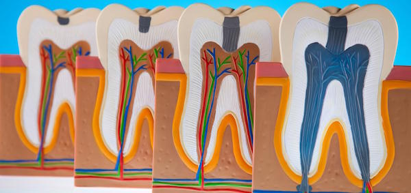 Why Untreated Dental Infection is Life-threatening?