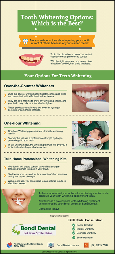 Tooth Whitening Options: Which is the Best?