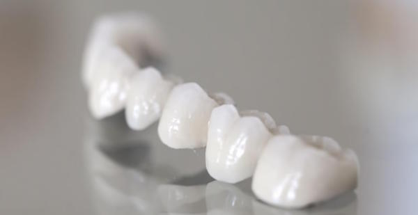6 Reasons to Choose Dental Bridges in Bondi
