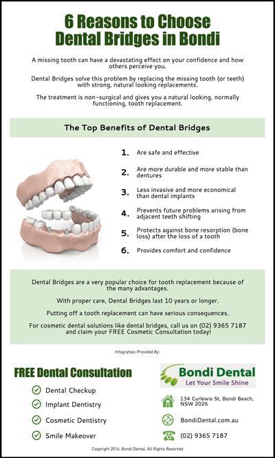 6-Reasons-to-Choose-Dental-Bridges-in-Bondi