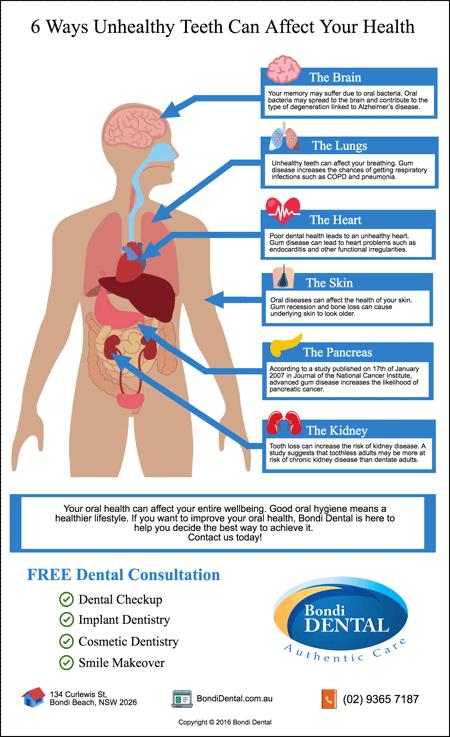 Bondi-Dentist-Trivia-6-Ways-Unhealthy-Teeth-Can-Affect-Your-Health