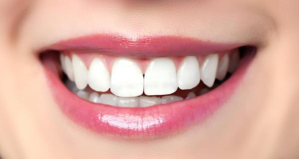5 Reasons to Choose Dental Veneers in Bondi