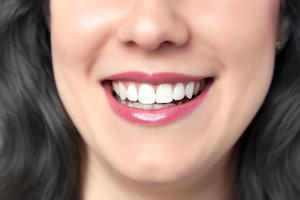 5-reasons-to-choose-dental-veneers-in-bondi-bondi-dentist