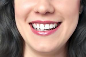 5-reasons-to-choose-dental-veneers-in-bondi-bondi-dentist