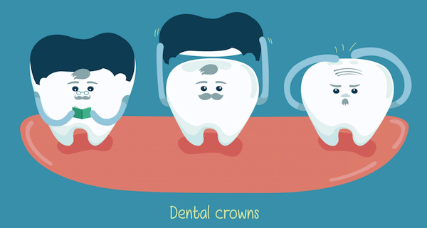 Dental Crowns: Everything You Need to Know