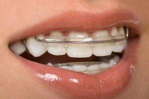 Bondi Dental Inman Aligner | Dentist Bondi