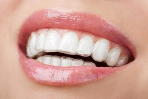 Bondi Dental Invisalign | Dentist Bondi
