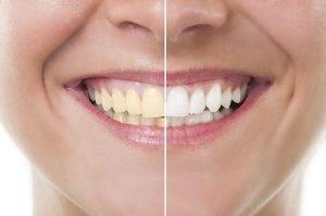 How To Get Rid Of Yellow Teeth Overnight Bondi Dental