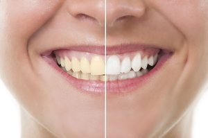 Professional Teeth Whitening In Bondi Safe Fast Long Lasting