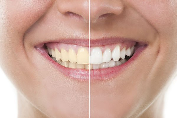 Professional Teeth Whitening in Bondi – Safe, Fast, Long-lasting