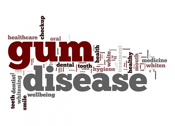 Gum Disease – Causes, Protection, Cures