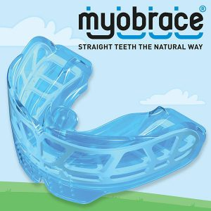 Bondi Dental | Myobrace | Dentist Bondi